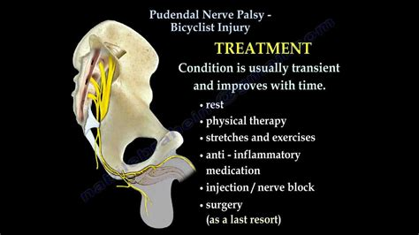 Pudendal Nerve Palsy Bicyclist Injury - Everything You